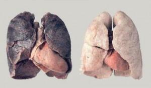 i polmoni di un fumatore e quelli di un non fumatore